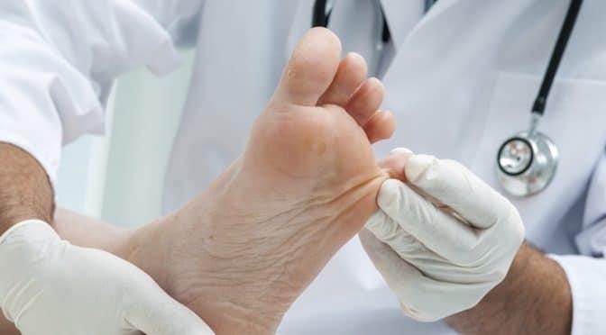 Mycoses cutanees : des orteils aux ongles en passant par le dos et le décolleté