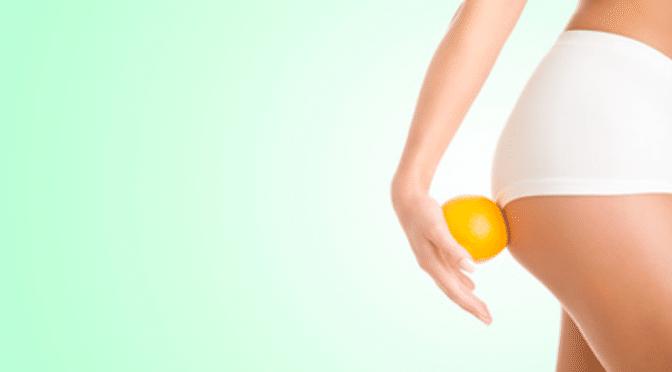 Vaincre sa cellulite et sa peau d'orange