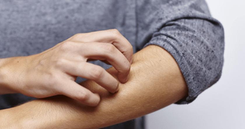 Causes et comment traiter le psoriasis, cette maladie de peau