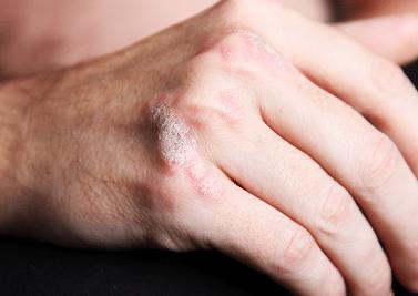 Psoriasis : symptômes et précautions