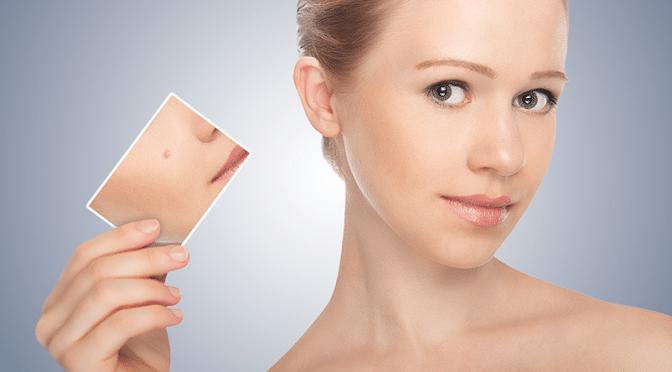 Faire disparaitre l'acné rapidement