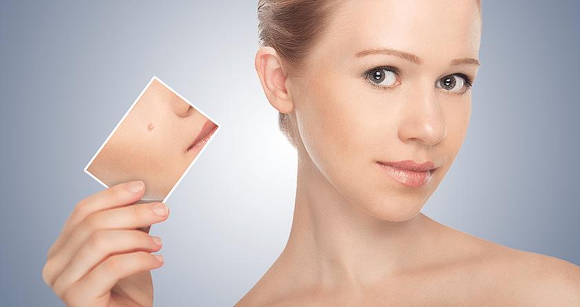 se_debarrasser_de_l_acne