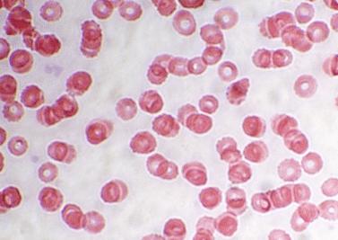 Hémophilie : Faire avancer la recherche !
