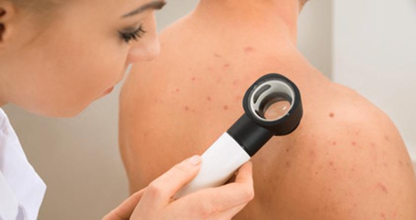 acne_severe