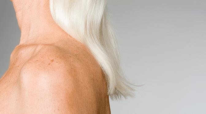 Bilan sur l'ostéoporose