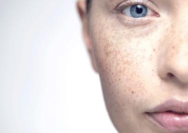 Comment avoir une belle peau et l'entretenir ?