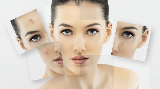 Les différents visages de l'acné