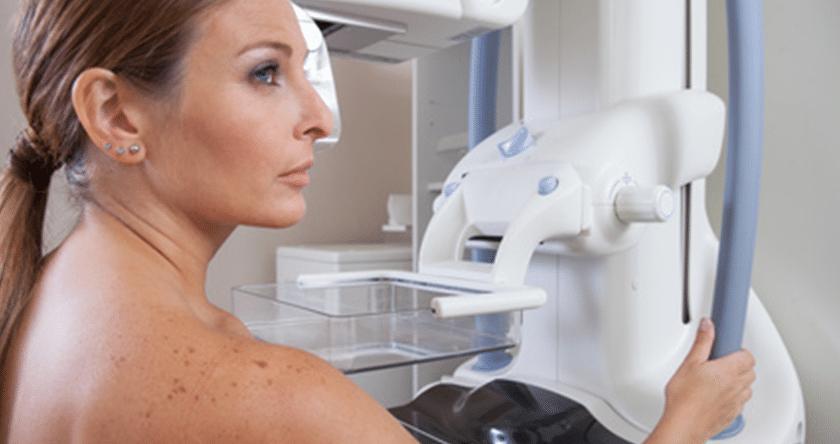 Cancer du sein : dépistage et traitement