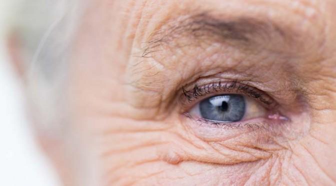 Lumière sur la cataracte