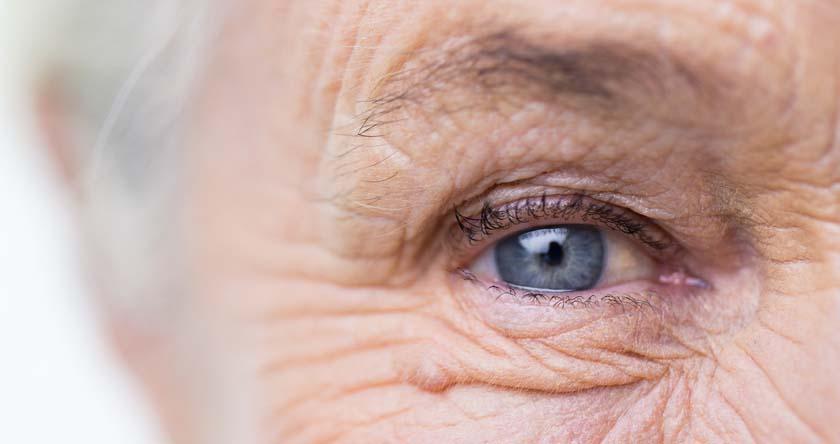 cataracte, rétine, vision, cristallin, troubles de la vue
