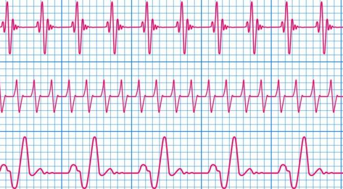 Que faut-il savoir sur l'électrocardiogramme ?