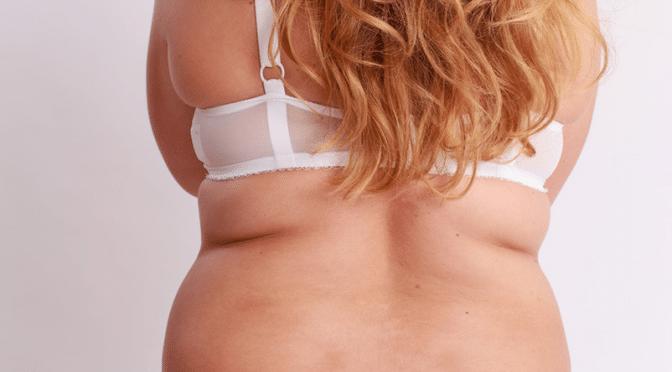 L'obésité : 3 millions de victimes chaque année dans le monde