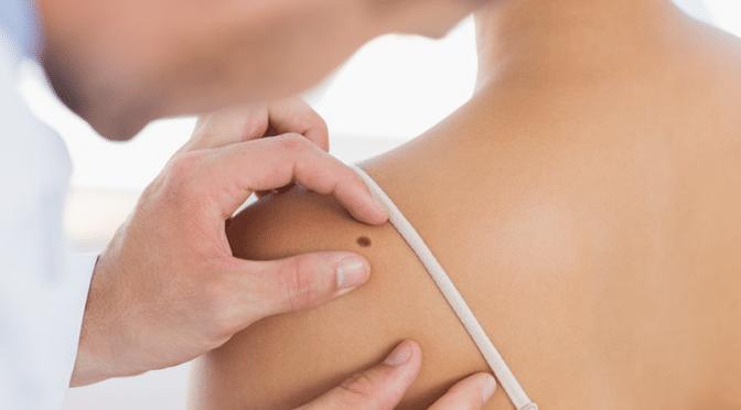 Sauver sa peau : prévenir et dépister les cancers cutanés!
