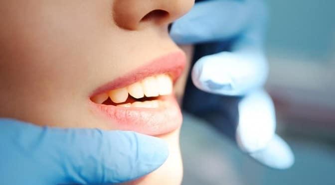 Des dents mal alignées nuisent à notre santé