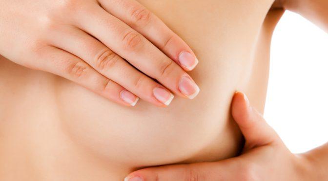 Biopsie du sein : comment ça se passe ?