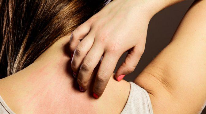 Formes et traitement de l'urticaire