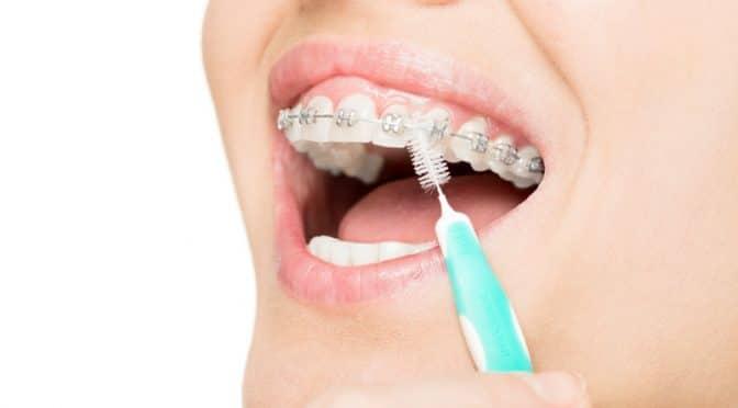 Les bons gestes pour entretenir son appareil orthodontique