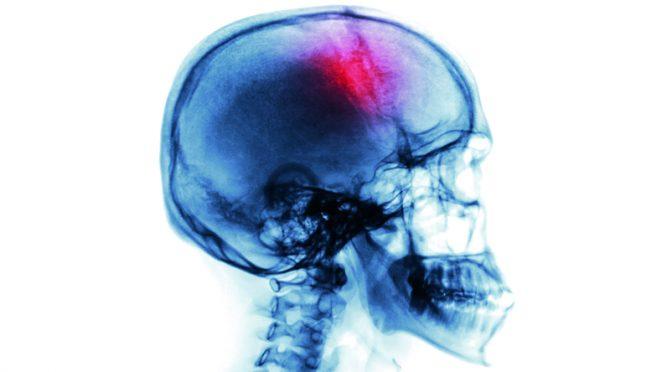 AVC : quels sont les symptômes et comment réagir ?