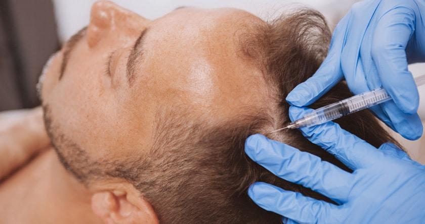 Pourquoi la greffe de cheveux est-elle devenue tendance ?