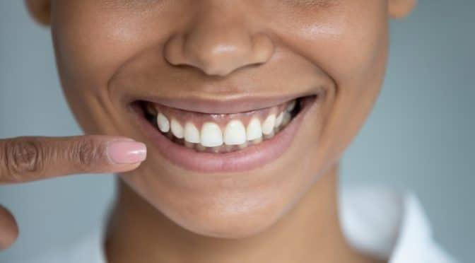Les dents, miroir de notre bonne santé…